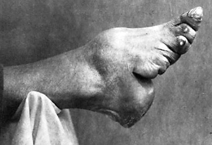 Chinese foot binding images
